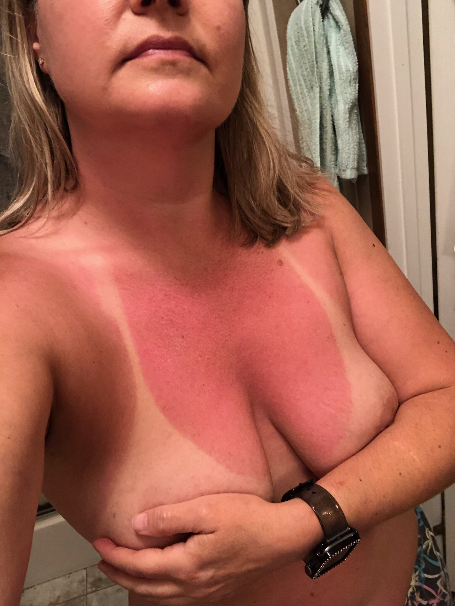 Is it too late for the sunscreen?